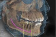 Implantologie & Chirurgie